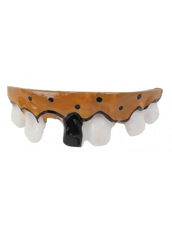 Dentadura con caries
